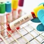 Нових 326 случајева корона вируса